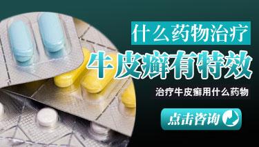 中医治疗银屑病的方法